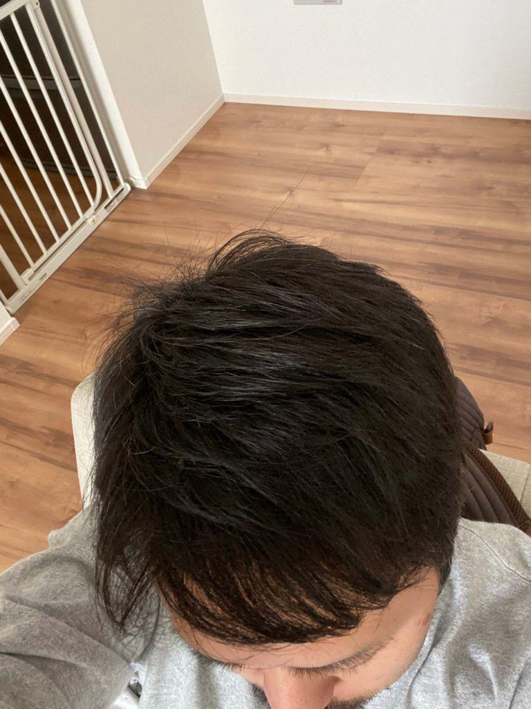 私のハゲ・薄毛体験と改善策